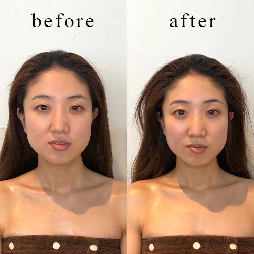 頭顔矯正-施術後イメージ<1回目>