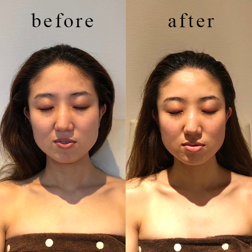 頭顔矯正-施術後イメージ<2回目>