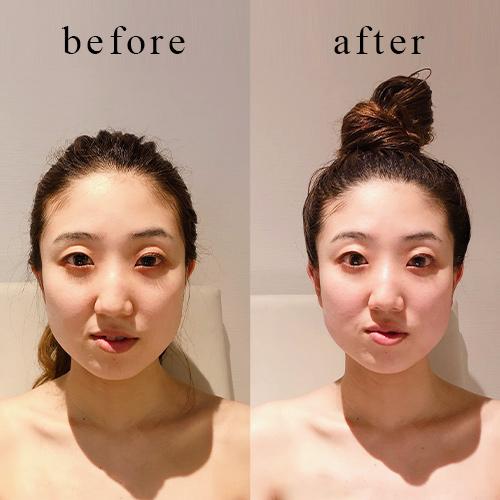 頭顔矯正-施術後イメージ<3回目>
